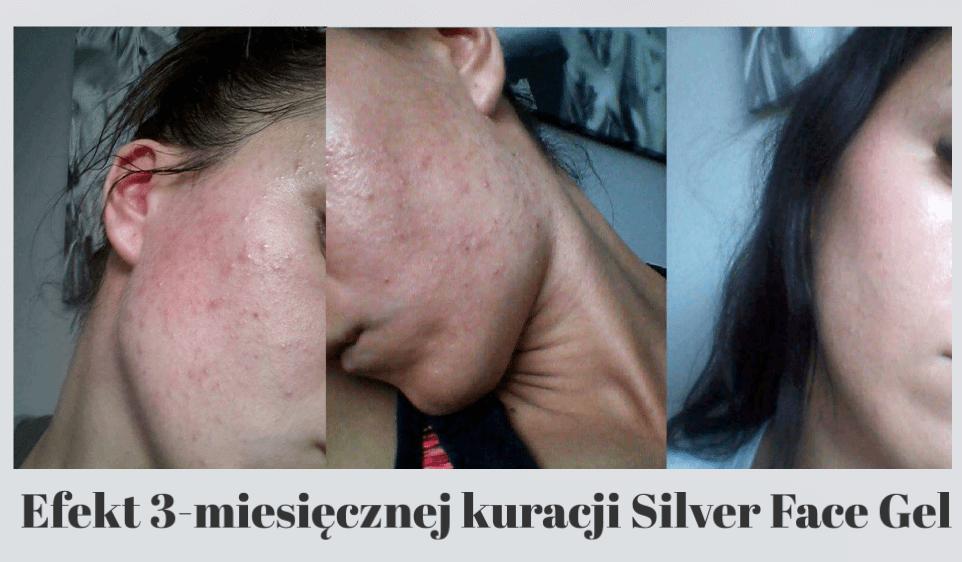 Silver Face Żel na trądzik
